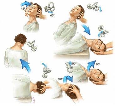physical therapy vertigo treatment